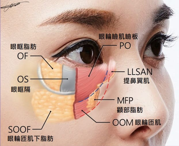 三明治眼袋眼周組織解剖圖