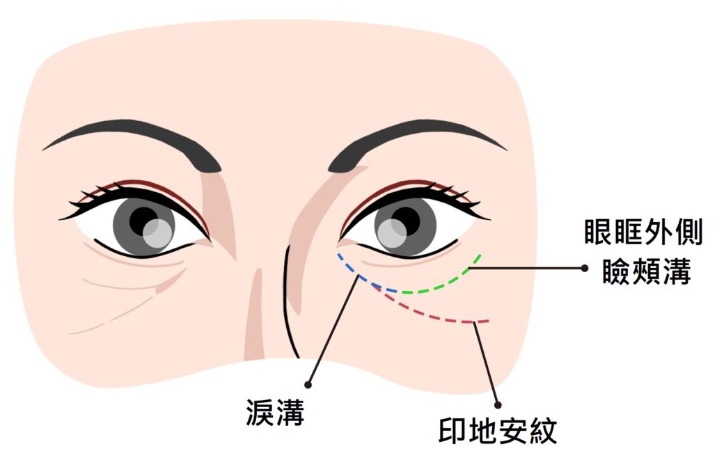 瞼頰溝與淚溝的位置