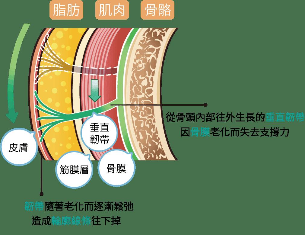 韌帶老化鬆弛而造成輪廓線往下掉 (1)