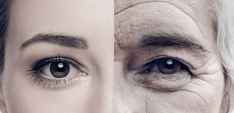 眼袋和先天有一定的關係,但後天的因素也不容小覷