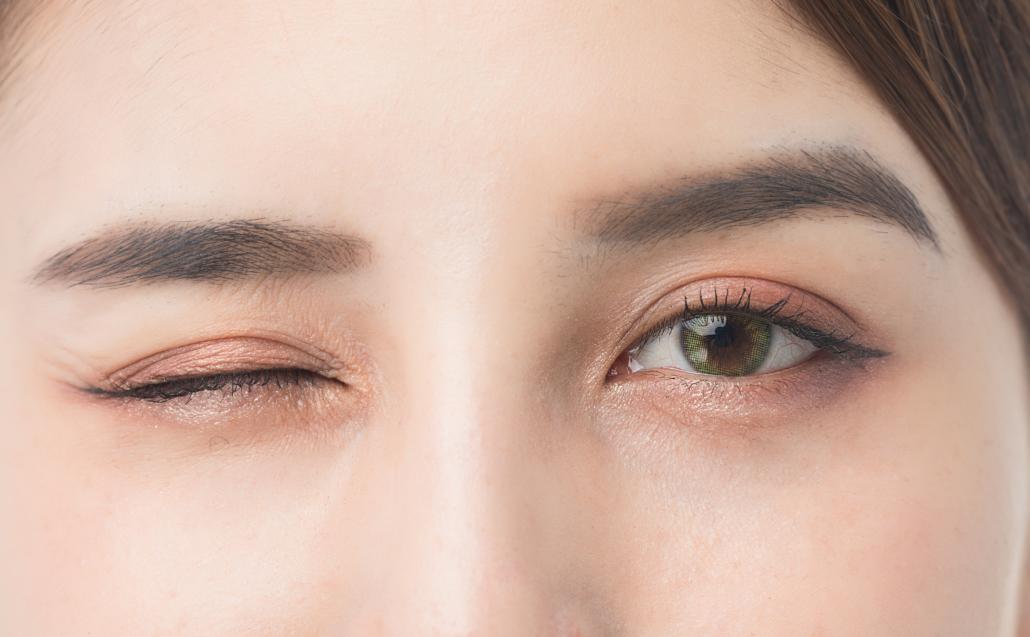 韓式無痕雙眼皮 訂書針雙眼皮