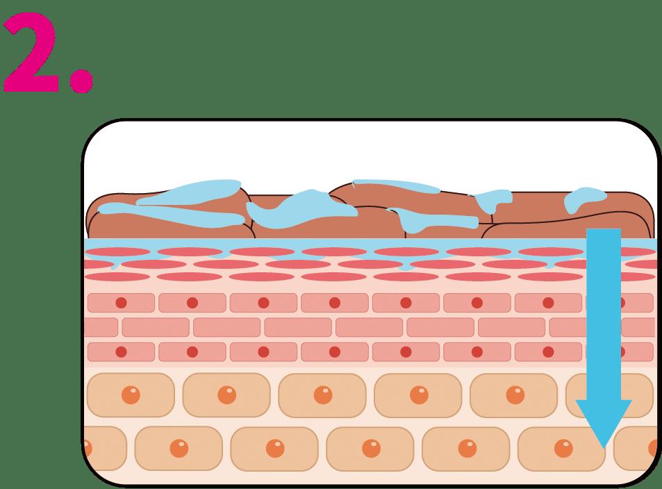 杏仁酸煥膚作用機制