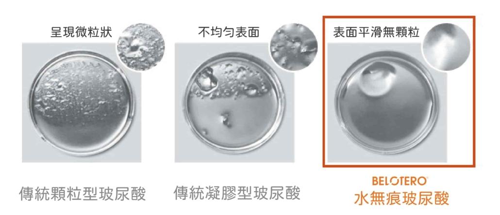 Belotero水無痕玻尿酸內聚力高彈性高可塑性