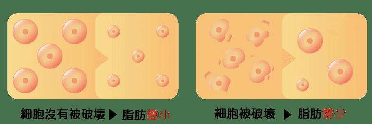 消脂針皮下減脂細胞變化