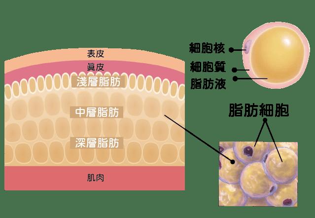 消脂針皮下減脂脂肪球構造
