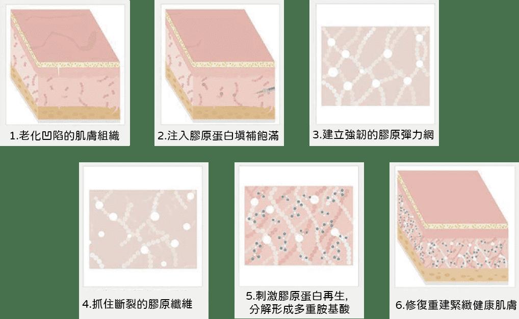 熊貓針補充膠原蛋白流失作用機制
