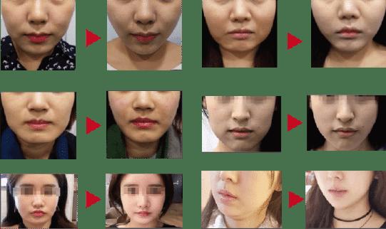 消脂針臉部效果
