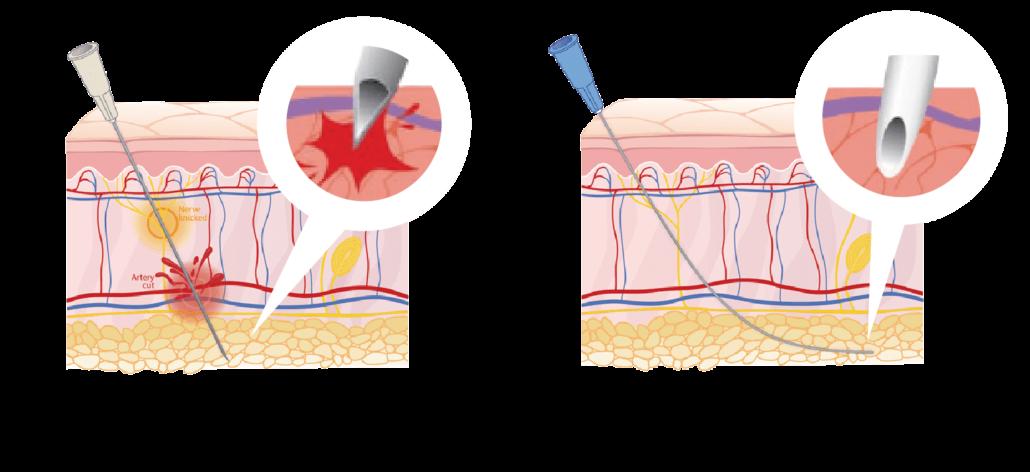 異體真皮粉使用鈍針配合施打