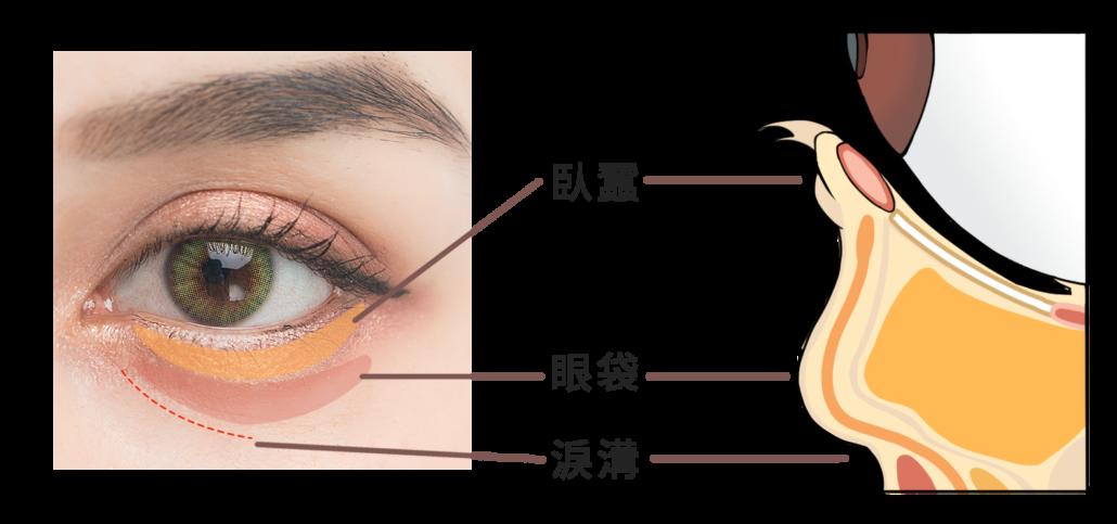 如何區分眼袋淚溝