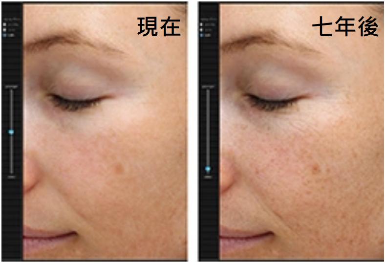 肌膚檢測儀
