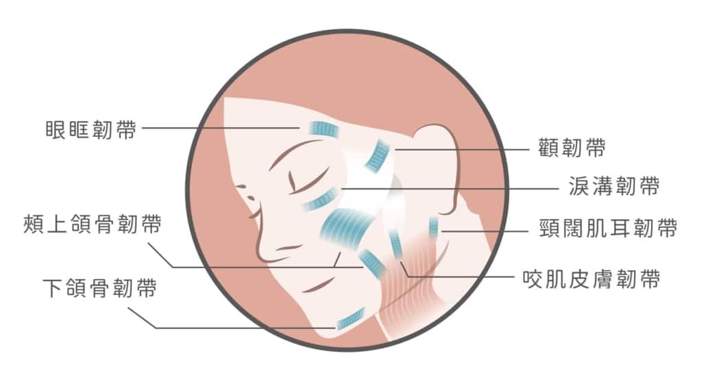 鳳凰電波定錨式拉提-臉部韌帶部位圖