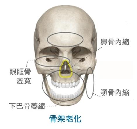 晶亮瓷治療骨架老化