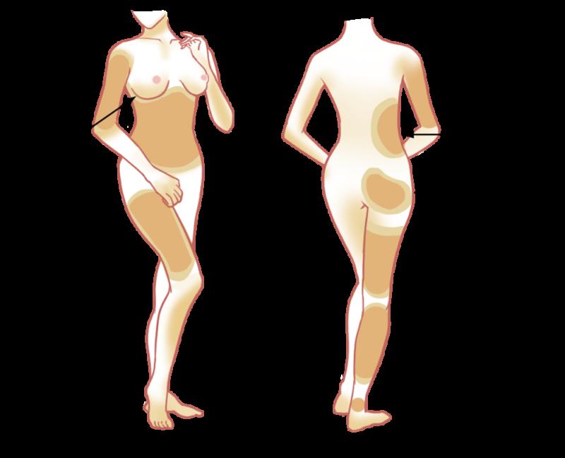 4.自然感自體脂肪移植術