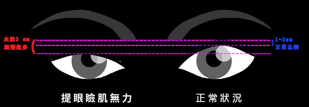 開眼頭.提眼瞼