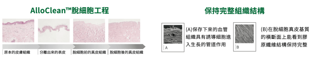使用AlloClean™技術加工的人體皮膚。 Alloclean™工藝可滅活或清除細胞碎片,抗原和潛在病毒,同時保持 預處理膠原蛋白固有的結構完整性