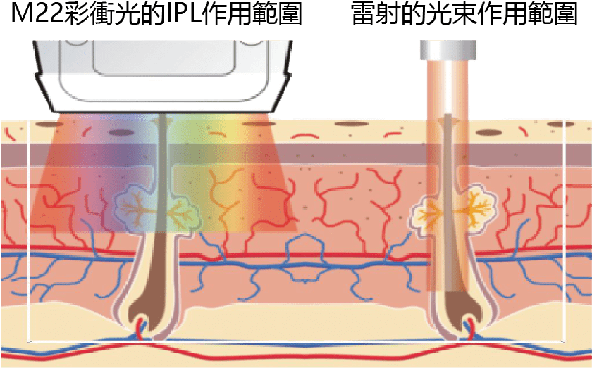 M22彩衝光的IPL作用範圍