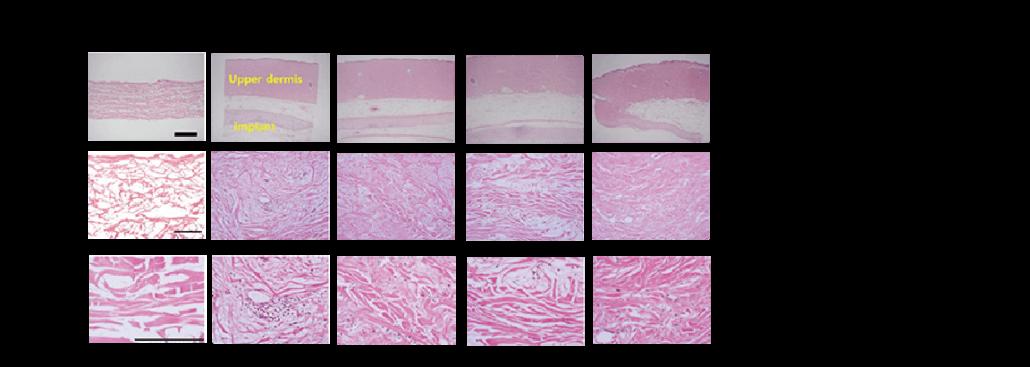 異體真皮整合機制說明