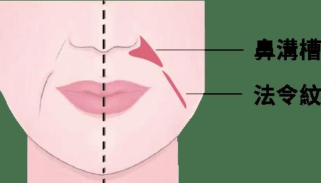 鼻溝槽法令紋