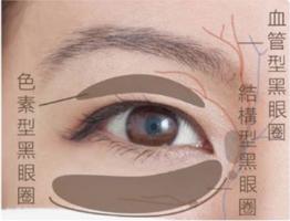 混合型黑眼圈