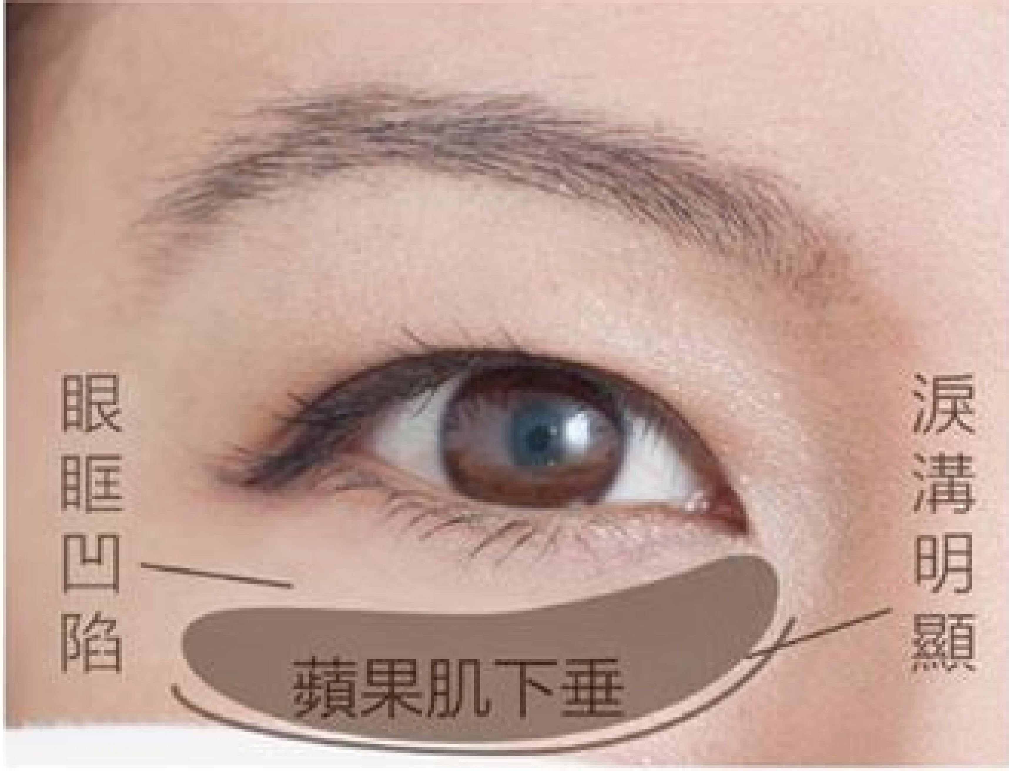 結構型黑眼圈