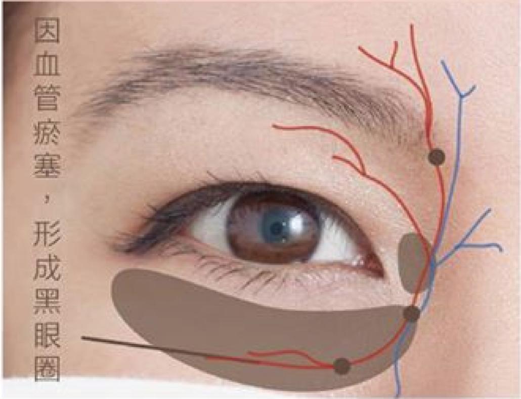 血管型黑眼圈