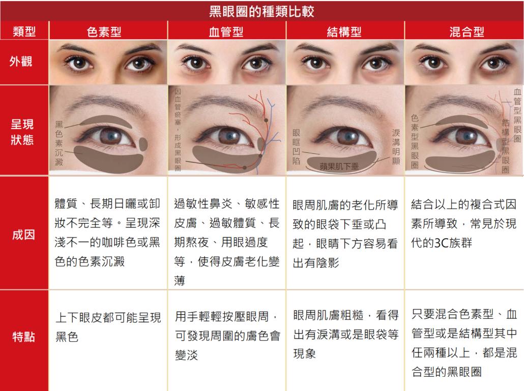 熊貓針能夠改善的黑眼圈種類