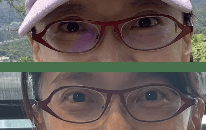 三明治眼袋網友推薦1
