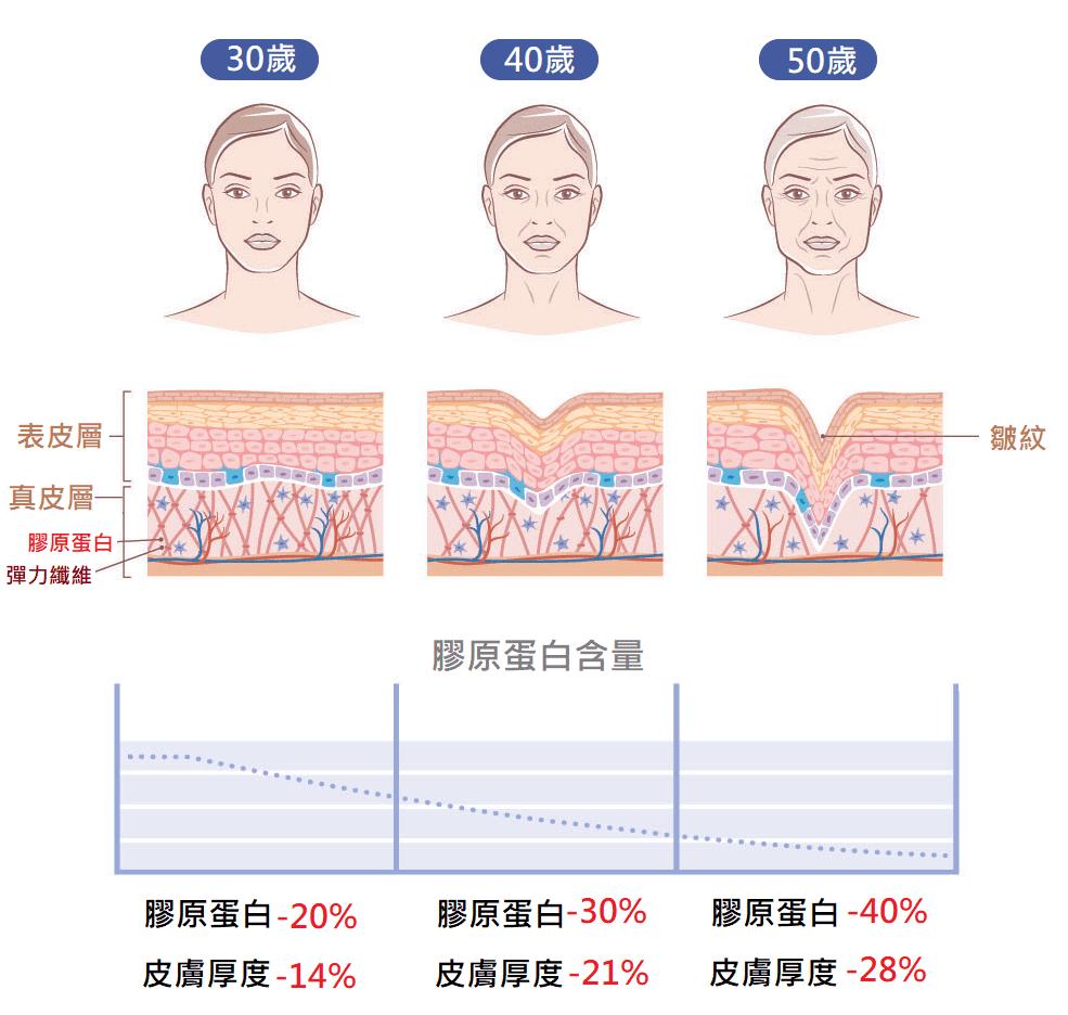 膠原蛋白流失量 決定衰老程度