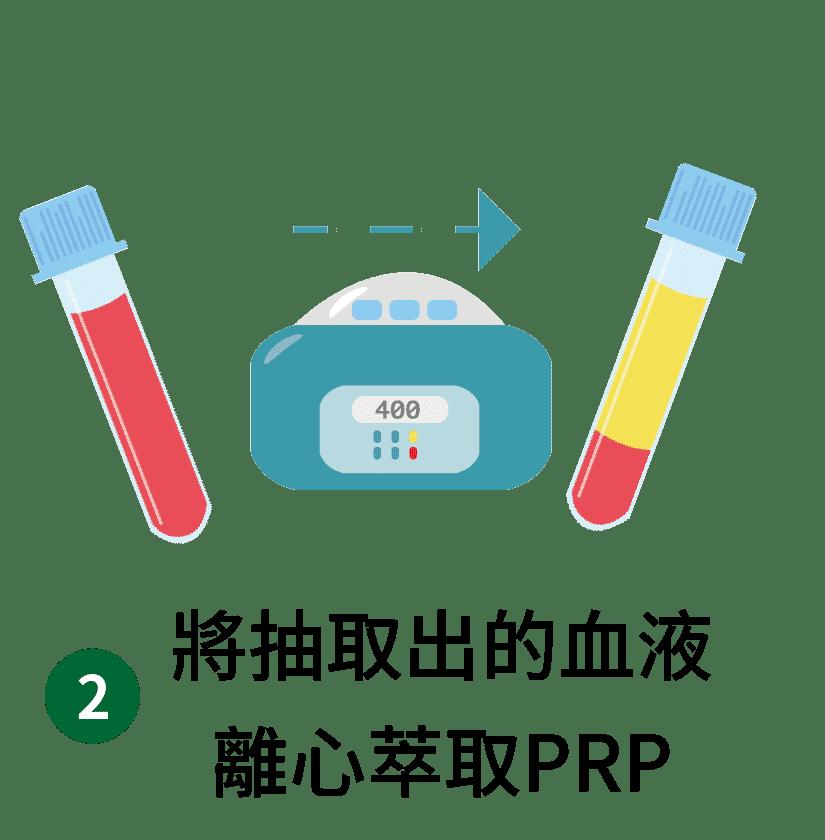 異體真皮粉與PRP步驟-離心