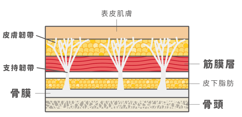 鳳凰電波定錨式拉提-支持韌帶結構