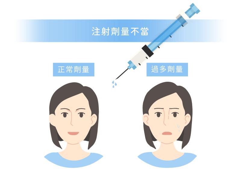 玻尿酸隆鼻阿凡達