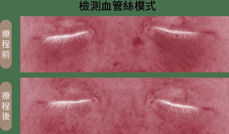 黑眼圈雷射熊貓光對比_紅血絲