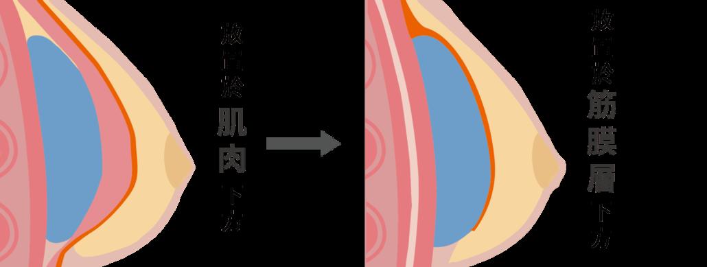 mentor曼陀水滴隆乳放置筋膜層下方