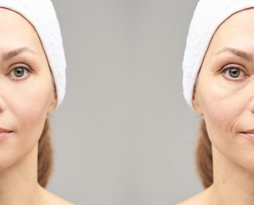 玻尿酸眼袋失敗怎麼辦?認識玻尿酸淚溝後遺症
