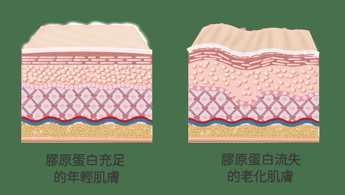 膠原蛋白流失造成皮膚鬆垮