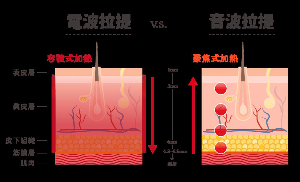 鳳凰電波拉提與音波拉提比較-作用深度