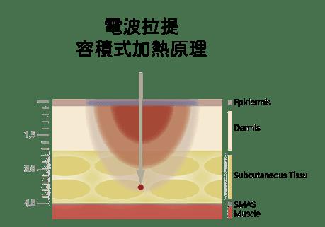 電波拉提與音波拉提比較-電波容積式加熱原理