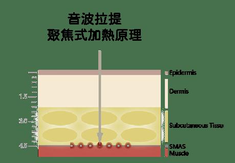 電波拉提與音波拉提比較-音波聚焦式加熱原理