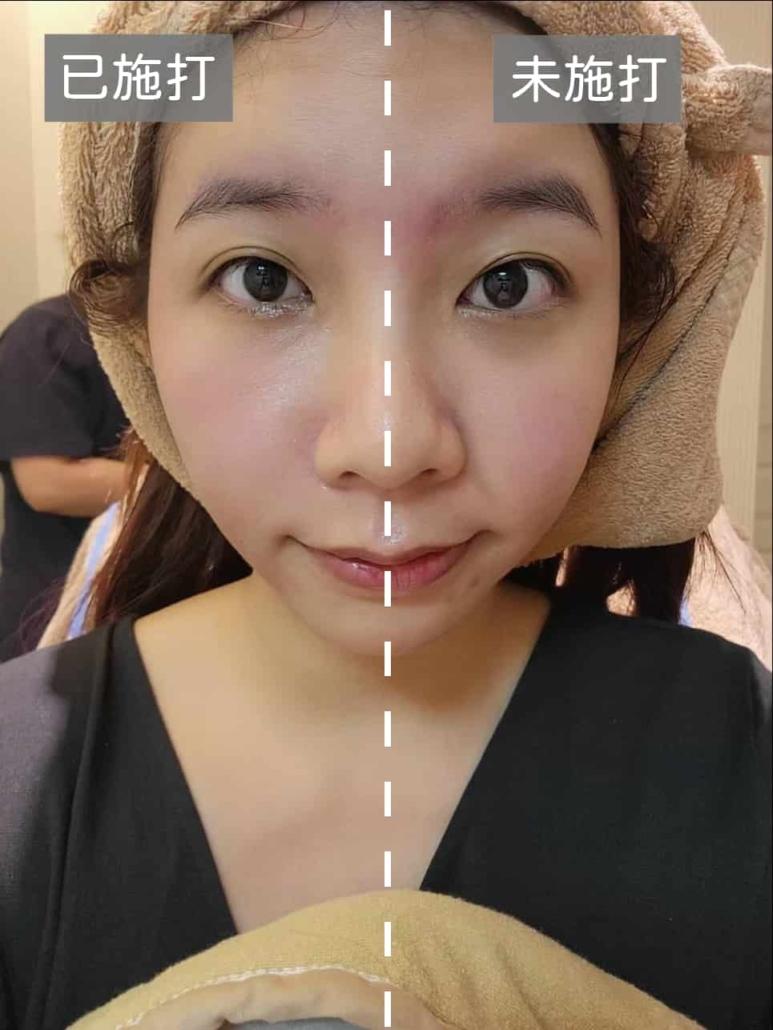 吳夢夢微整-術前術後半臉比對-熊貓針/Vivacy/異體真皮粉