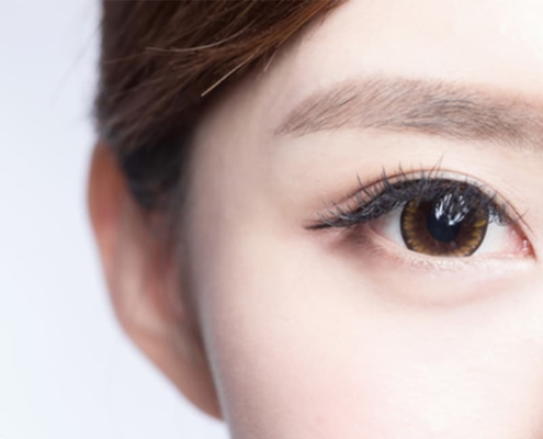 眼袋臥蠶怎麼分?看這篇一次搞懂淚溝眼袋和臥蠶的差別